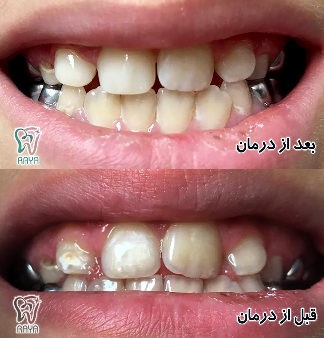 ترمیم دندان شیری