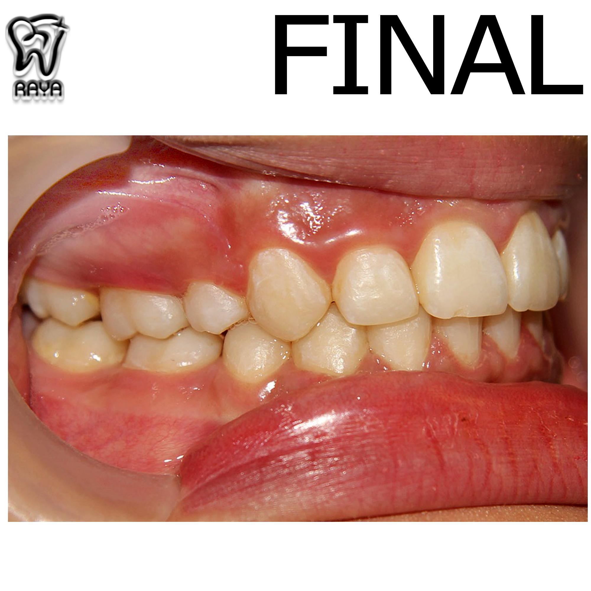 دندان مرتب
