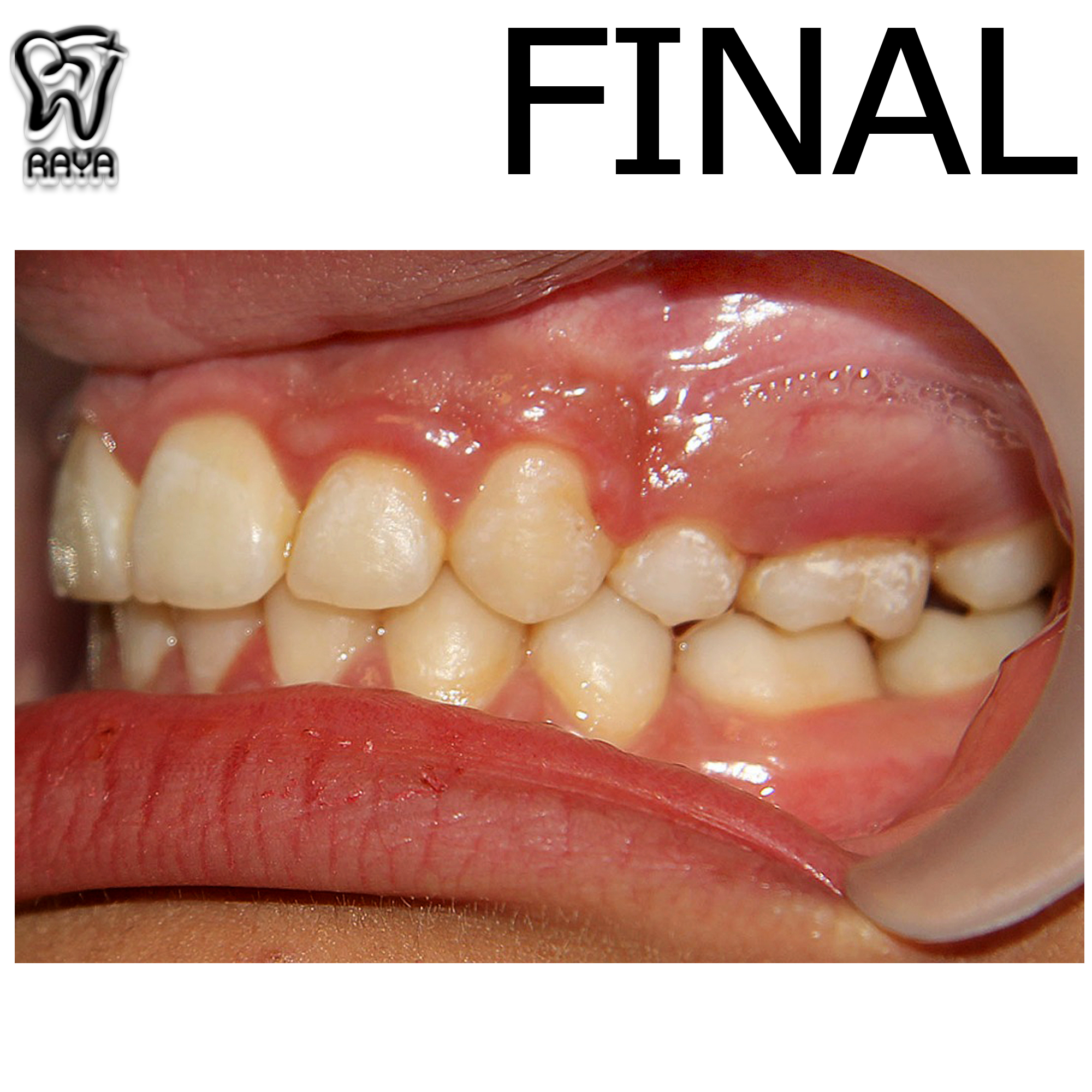 دندان منظم