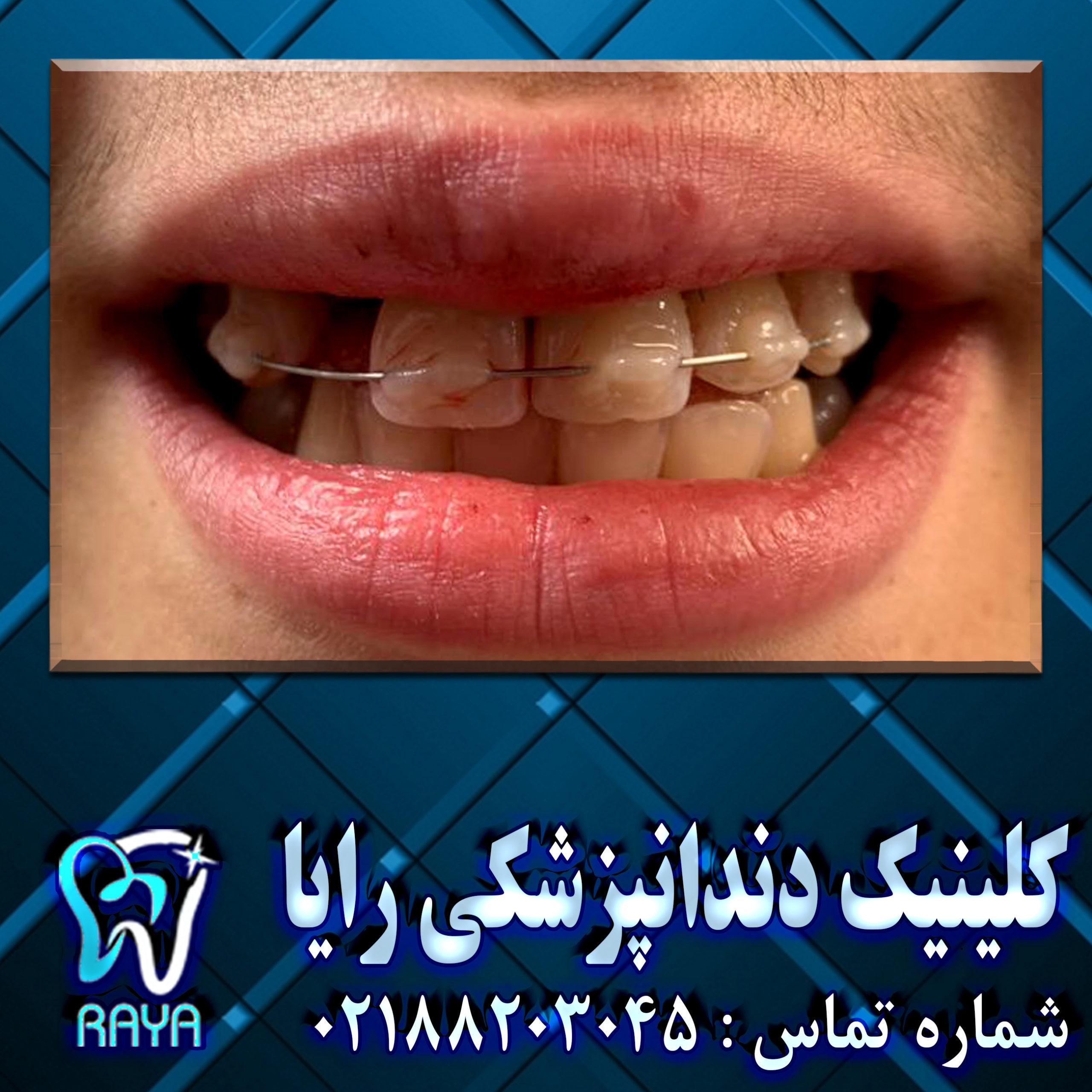 اسپلینت دندان