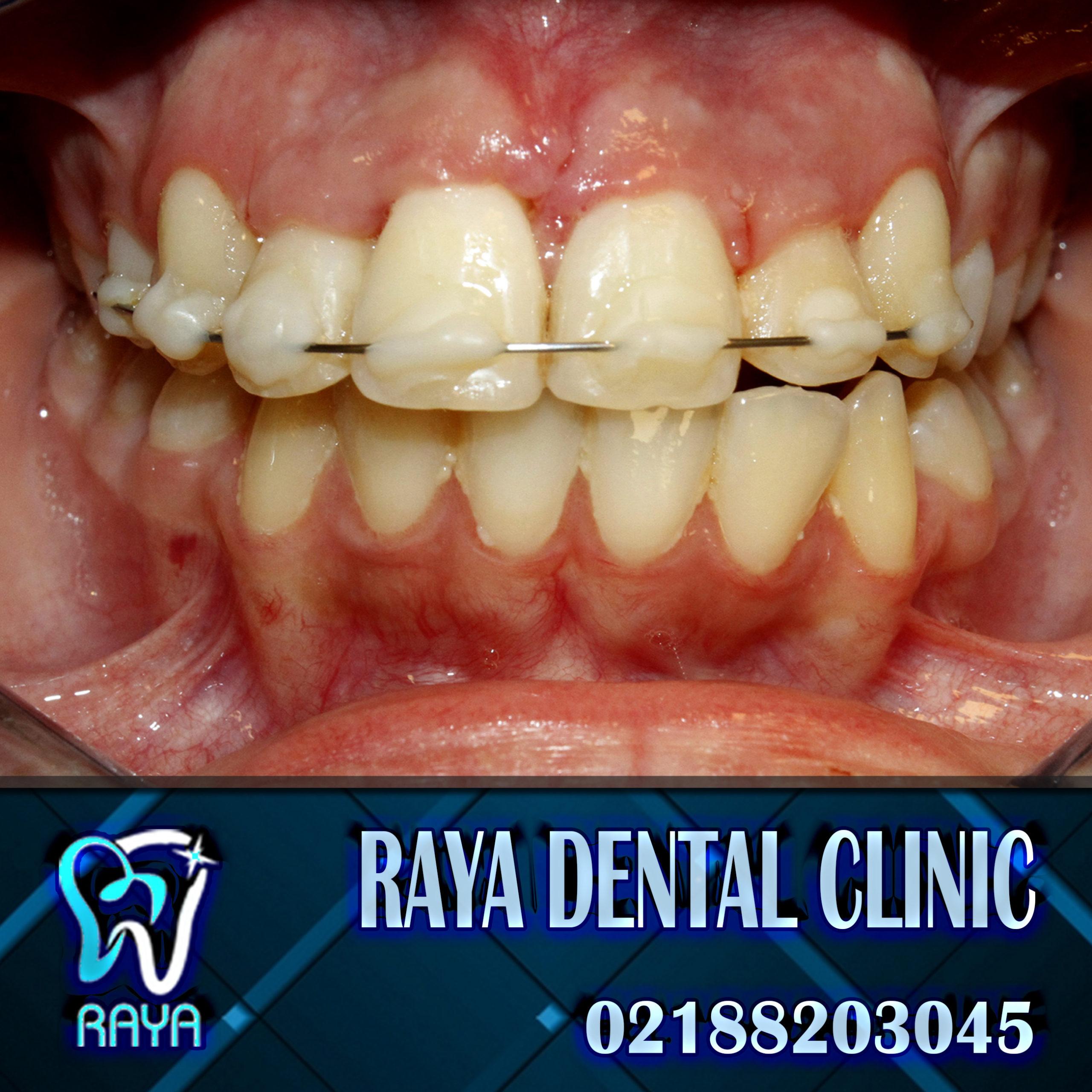 مرتب شدن دندان