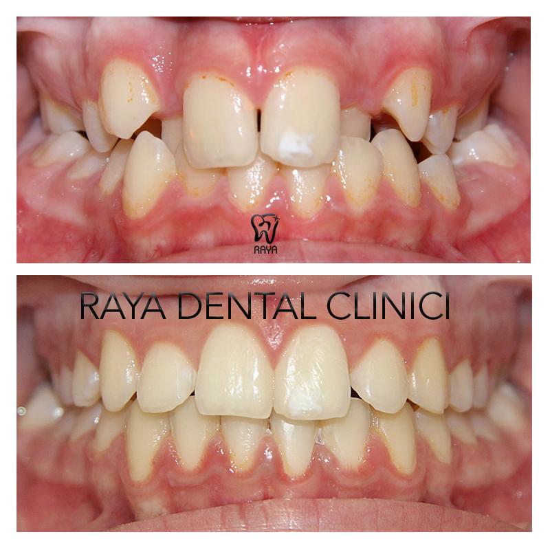 نظم دندانی