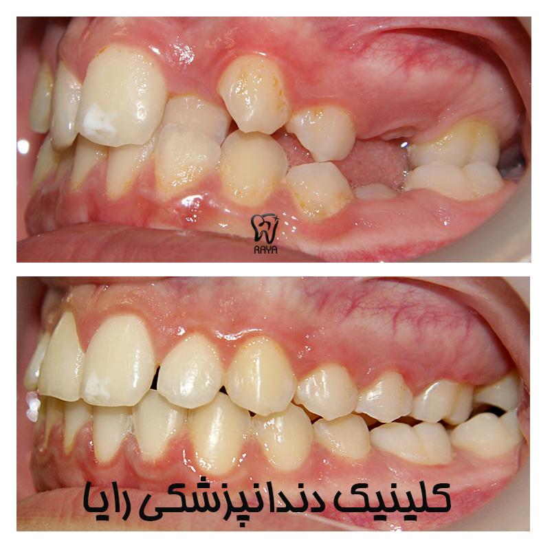 مرتبی دندانها
