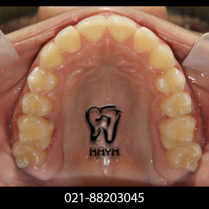 دندانهای زیبا