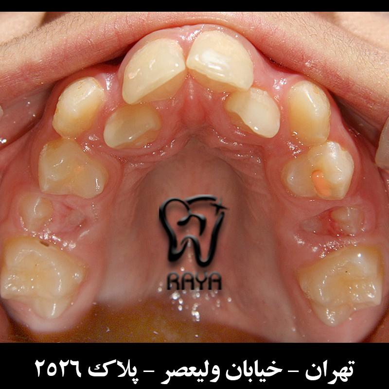 دندانهای نامرتب