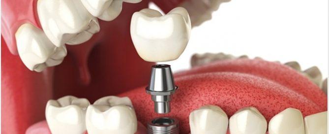 بهترین ایمپلینت دندانی کدام است