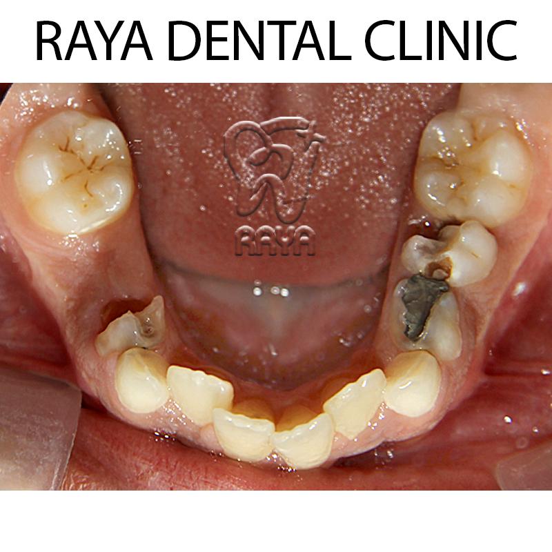 دندانهای نازیبا