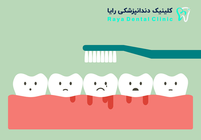 brushing-teeth-with-bleeding-on-gum-and-tooth-rayadentalclinic