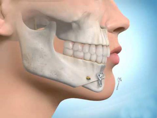 جراحی فک چیست؟