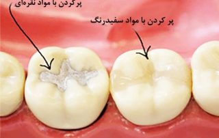 پركردن دندان با مواد مخصوص