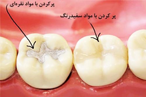 پرکردن دندان با مواد مخصوص