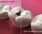 پرکردن دندان-Dental Fillings