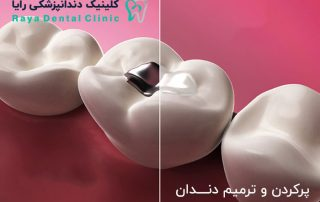 پركردن دندان-Dental Fillings