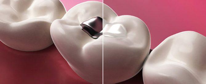 پركردن دندان-Dental Fillings