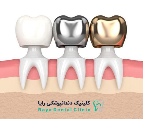 قرار دادن روکش در کاشتن دندان طبیعی