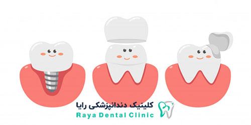 هزینه های مربوط به کاشت و ایمپلنت دندان ها