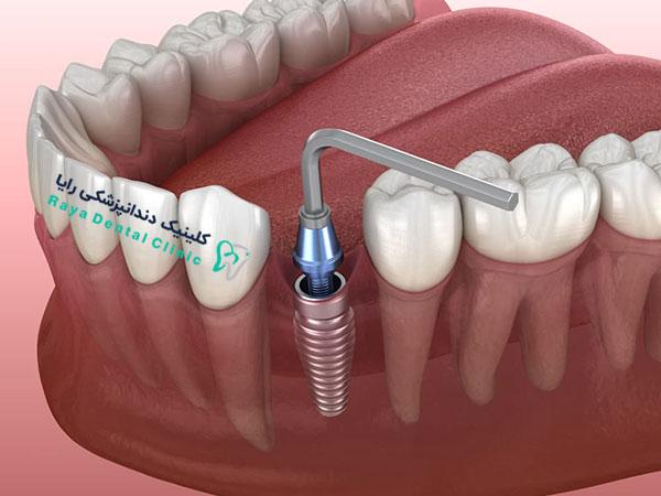 روش جدید کاشت دندان آسیاب با ایمپلنت