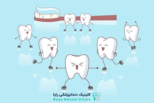 کاشت دندان ها با چسب
