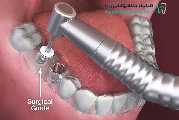 جدیدترین تکنولوژی کاشت دندان