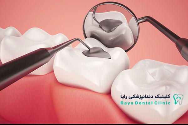 هزینه پرکردن دندان-رایا دنتال کلینیک