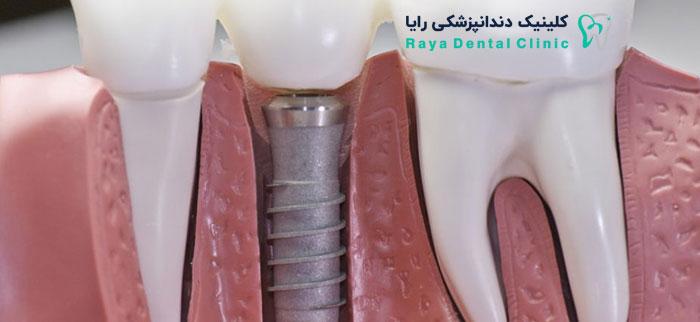 Dentalimplants-کاشت دندان