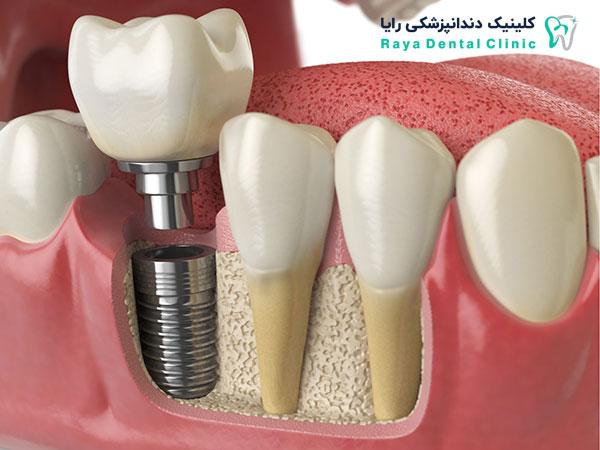آشنایی با روش های کاشت دندان افتاده