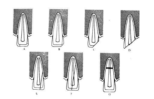 انواع شکستگی دندان