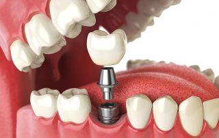 کاشت دندان ثابت