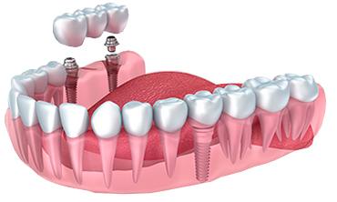 بریج دندان چیست؟