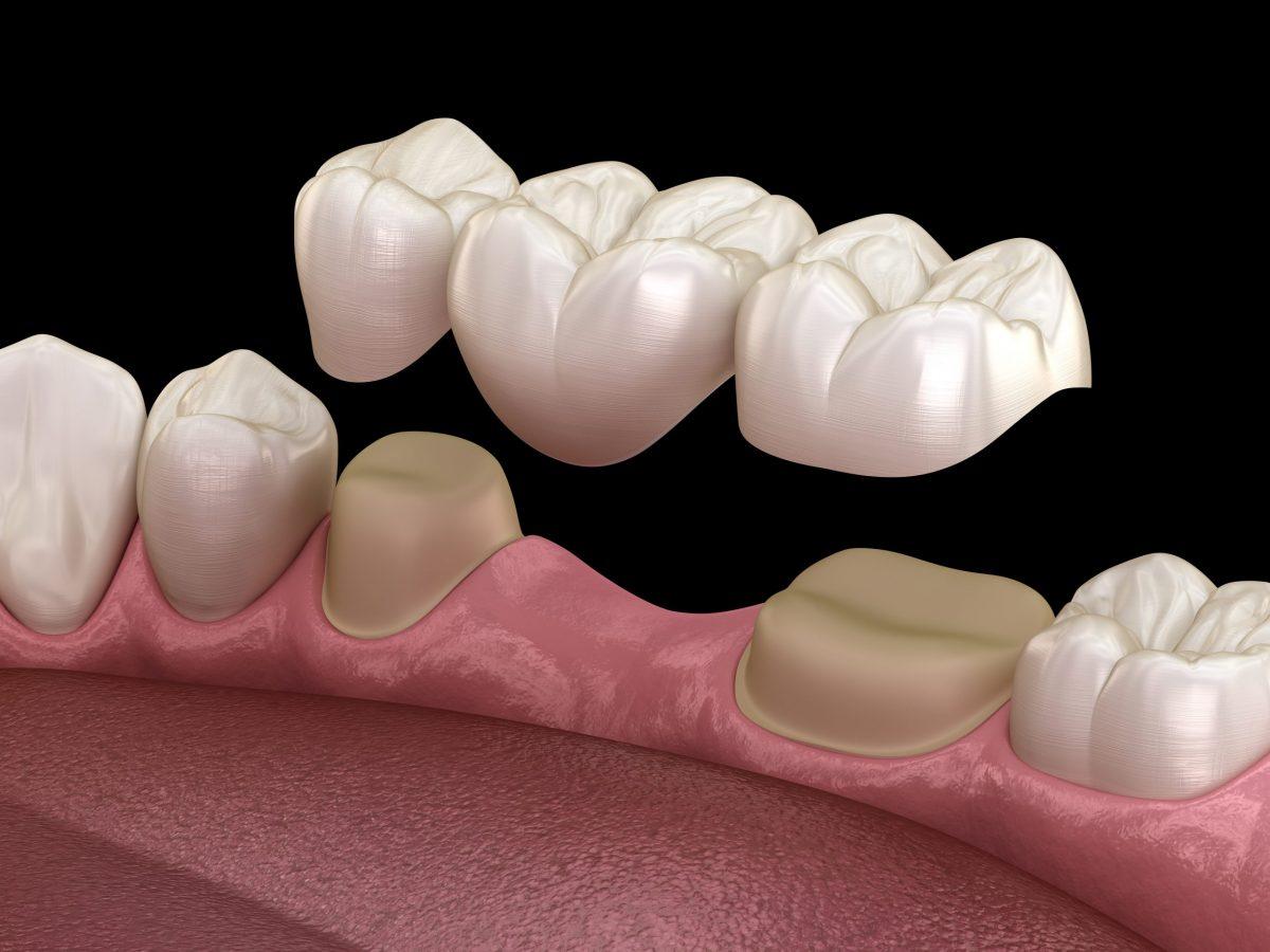 محدودیت سنی ایمپلنت دندان