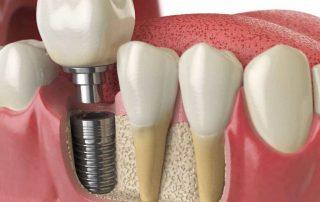 بهترین روش کاشت دندان