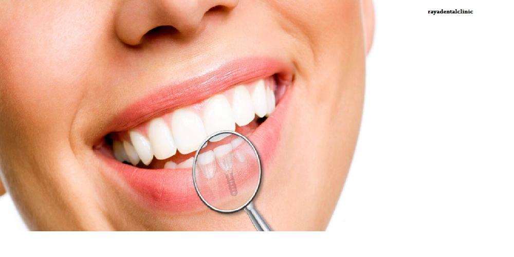 مزیت کاشت دندان