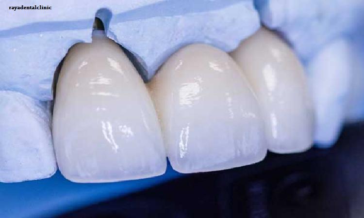 کاشت دندان با بیهوشی