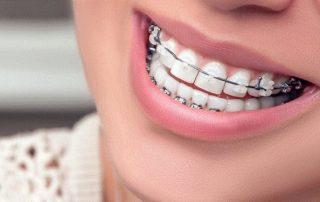 درمان دندان با ارتودنسی