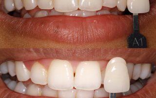 روش بلیچینگ دندان