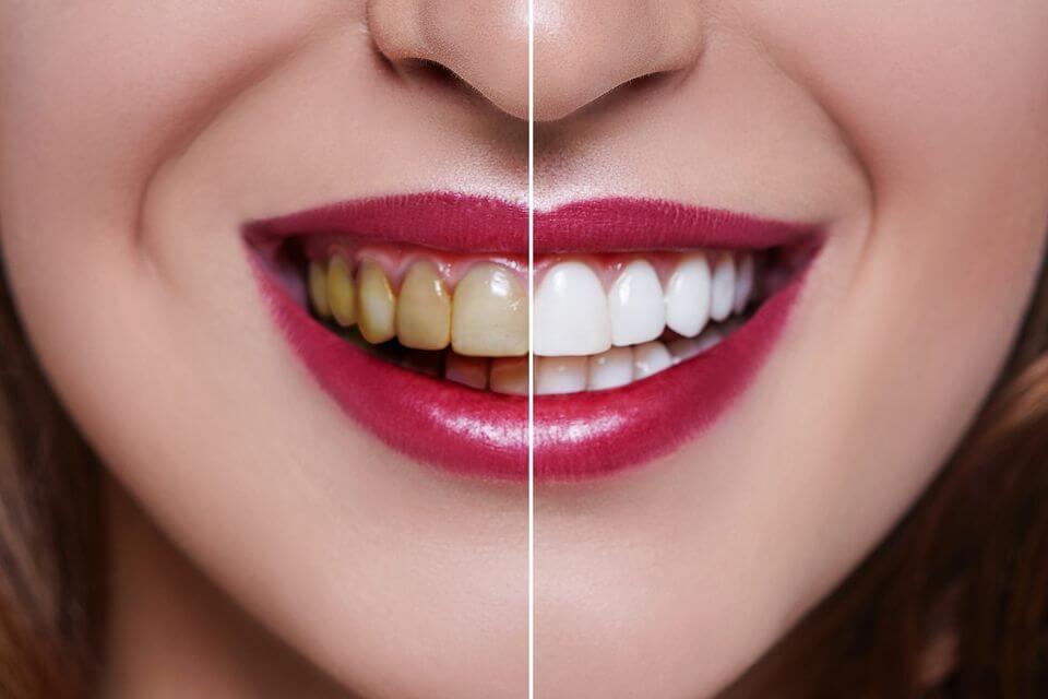 انواع بلیچینگ دندان