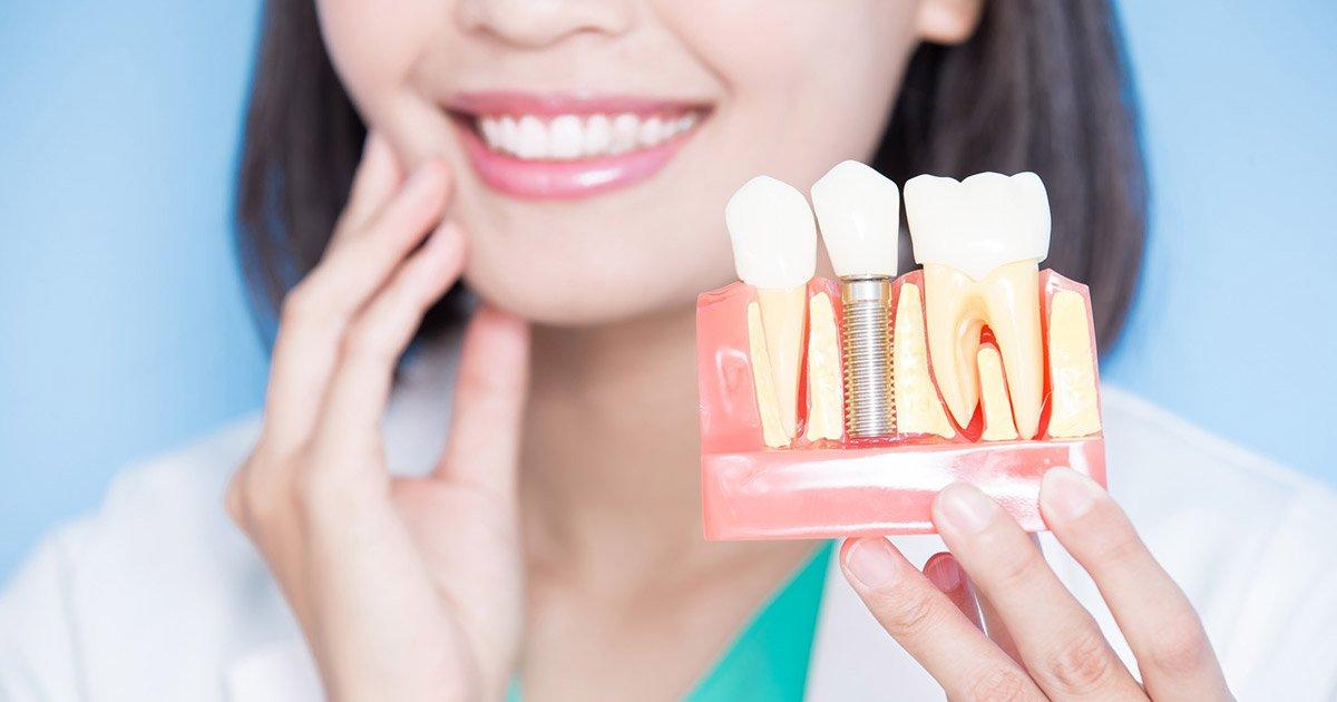 کاشت ایمپلنت دندان