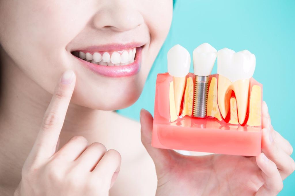 کاشت دندان به روش سنتی