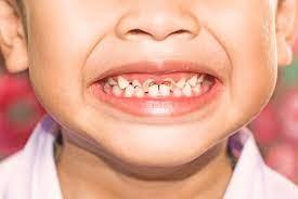 درمان دندان کودک