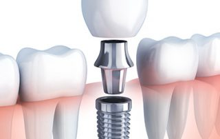 هزینه ایمپلنت دندان