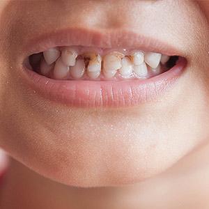 بهترین زمان کامپوزیت دندان