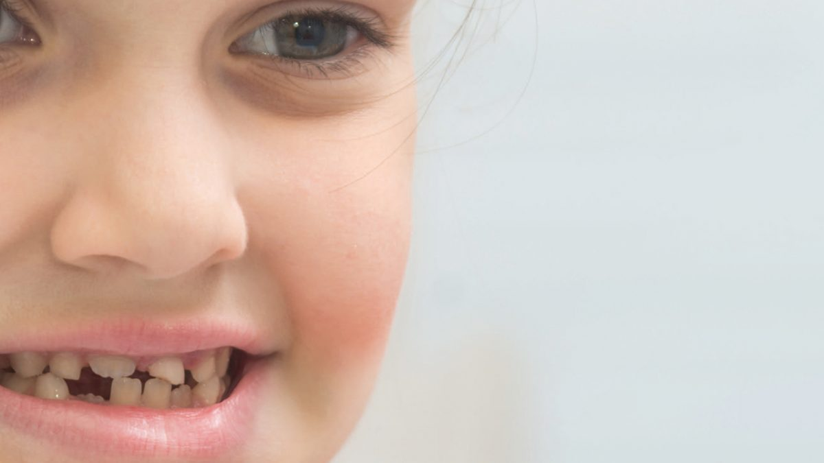 کامپوزیت دندان شیری کودک