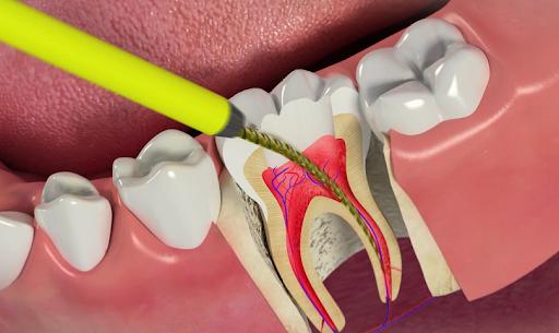 عمل ایمپلنت دندان