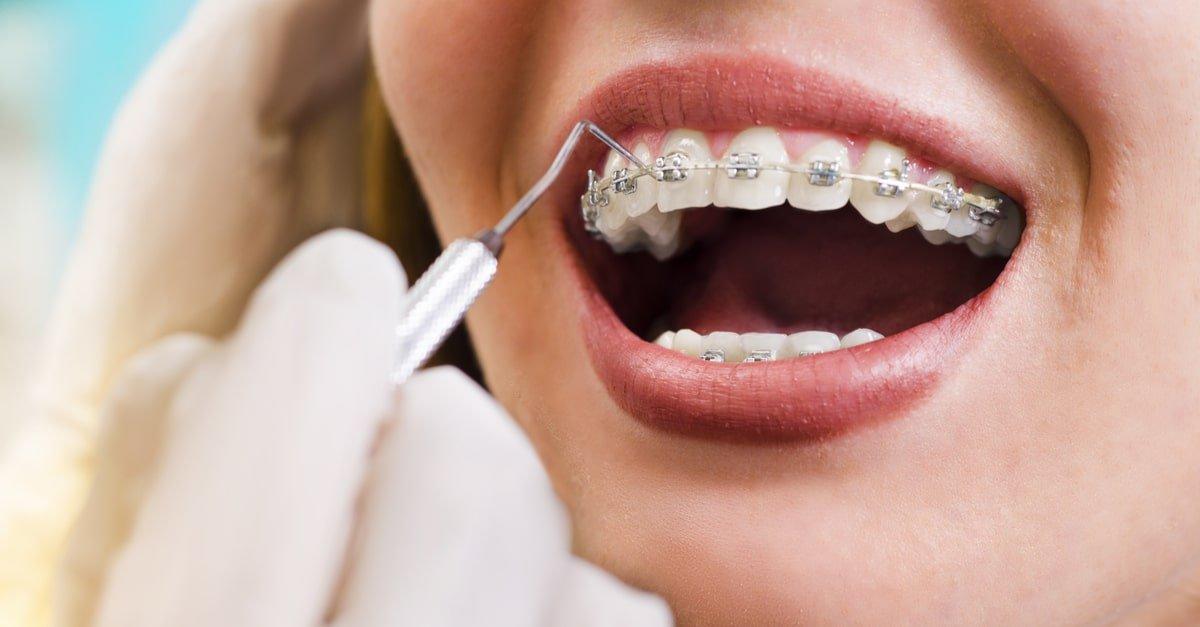 هدف از ارتودنسی دندان ها