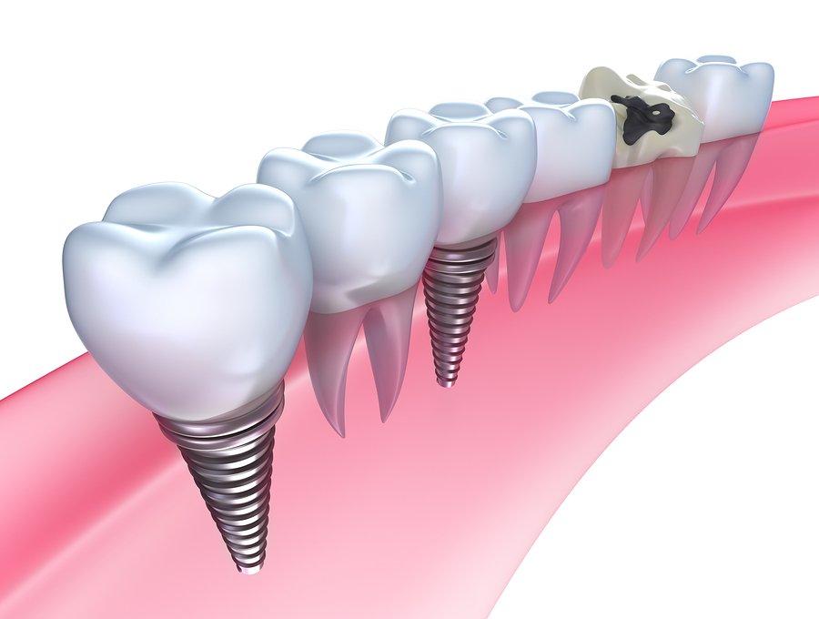 کاشت دندان جایگزین