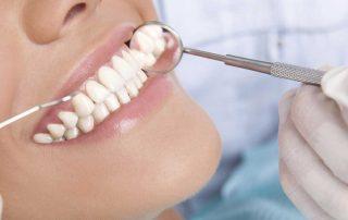 بهترین جایگزین دندان