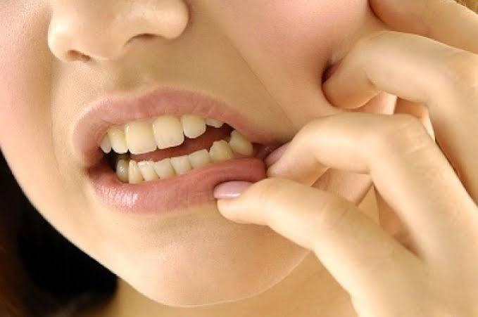 مراحل عمل عصب کشی دندان