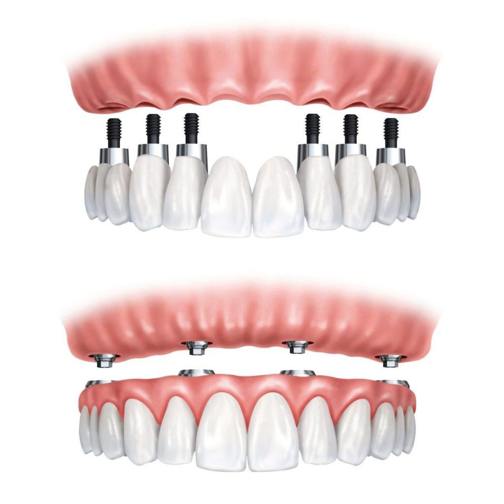 روش های مختلف کاشت دندان