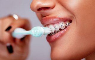 مسواک زدن دندان ارتودنسی شده