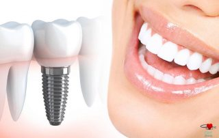 بهترین ایمپلنت دندان